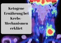 Ketogene Ernährung bei Krebs – Mechanismen erklärt