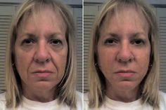 Face Stimulation Workouts To Age-Regress Your Face To An All Holistic Facelift
