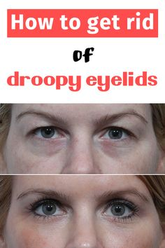 If you have droopy eyelids and want to get rid of this problem without resorting to surgery, here is how you can treat it using an egg: