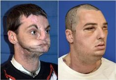 The astounding results of a full face transplant performed in March 2012. A man who lost part of his face to a gun accident and was a hermit for years now has his life back.