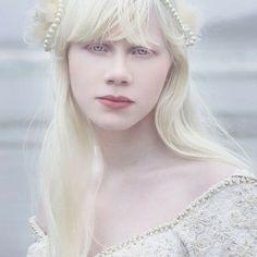 Albinismo é uma condição genética em que o indivíduo afetado tem apele extremamente branca. Lista traz 17 fotos de belas pessoas albinas.