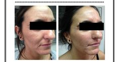 Peeling and injections in Paris for Skin Rejuvenation