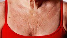 Masz zmarszczki na dekolcie? Sprawdź, jak je zwalczyć! Kobieceinspiracje.pl Youtube, Fitness, Beauty, Remedies, Diet, Health, Home Remedies, Keep Fit, Beauty Illustration