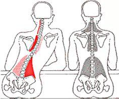 Een veelvoorkomende oorzaak van overmatige spierspanning is het scheef zitten aan tafel of hangend in de bank.  Deze afbeelding toont duidelijk hoe de spieren om de ruggengraat compenseren om de betreffende zenuw te beschermen (waar curve gewijzigd is). Spierfunctie  is normaliter voor beweging en ondersteuning, maar zodra we de natuurlijke curve onder druk zetten, komen onze spieren onmiddellijk in een beschermende functie aanpak. www.bodystressrelease.nl