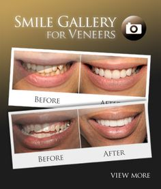 cheap cosmetic dentistry