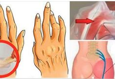 A Simple And Easy Trick For Removing Arthritis, Back Pain And Sciatica. Works Better Than Pills!