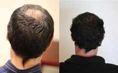 75 best Hair Transplant Clinic images in 2019 | Hair Loss Treatment