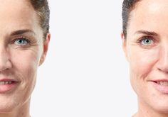 Anti-Age Instant Result | LR Health & Beauty Systems