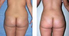 Resultado de imagen para resultados liposuccion