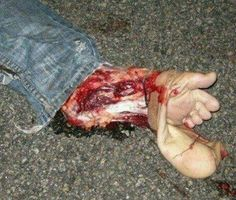 This is why you don't ride a bike with flip-flops.