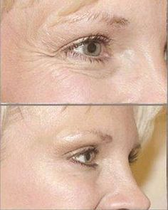 Botox injection is the fastest easiest way to improve the way you look in only a few days. Contact RejuveCare Clinix today and see if its right for you