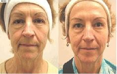 before and after, anti-aging, anti-aging skincare, anti-aging skin care, arbonne skin care.