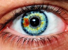 Sectoral Heterochromia. I actually have this in my own left eye