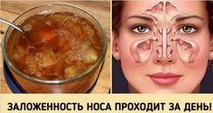 У вас заложен нос и замучил насморк?! Не спешите бежать в аптеку… Лучше попробуйте этот простой проверенный рецепт: