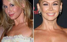 jenna johnson plastic surgery - Google Search Jenna Johnson, Plastic Surgery, Illusions, Photoshop, Google Search, Celebrities, Beauty, Women, Celebrity