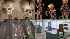 6 Museum Kedokteran yang paling Aneh di Dunia