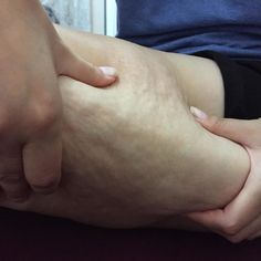 slim excelle celulita coapse Anti Cellulite, Slim, Health, Health Care, Healthy, Salud