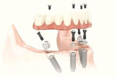 All on 4 dental implants: complex treatments made simple. #Allon4 #DentalImplants