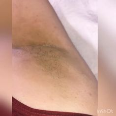 Under arm wax service done by a Pro using Hairy Days Are So Over. Our Hypoallergenic formula works great on sensitive areas. Perfect for Brazilian and sensitive areas. Low temp for customer comfort. Perfect for speed waxers tips brazilian video Waxing Bikini Area, Bikini Wax, What Is Vitiligo, Underarm Waxing, Waxing Tips, Beauty Hacks Eyelashes, Back Acne Treatment, Wax Hair Removal, Lotion