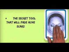 How to fade acne scars | How to treat acne scars | How to reduce acne scars - YouTube
