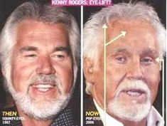 It's very surprising that Kenny Rogers got plastic surgery the way he did. He got an aggressive facelift, fillers, and Botox. Unfortunately, he goes in the bad plastic surgery category. Botched Plastic Surgery, Bad Plastic Surgeries, Plastic Surgery Gone Wrong, Celebrity Plastic Surgery, Surgery Humor, Botox Before And After, Eyelid Surgery, Tummy Tucks, Liposuction
