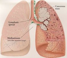 Types of Mesothelioma Cancer