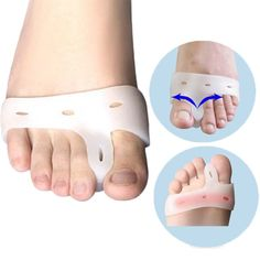 Calloused Toes or Crooked Toes - Hallux Valgus Brace - UNISEX - Foot Care. ✓ Designed for people who suffer from the hallux valgus. ✓ It can relieve pain from bent toes, overlapping toes and hallux valgus. Toe Spreader, Bunion Relief, Gel Toes, Hammer Toe, Big Toe, Foot Pads, Silicone Gel, Feet Care, Pedi