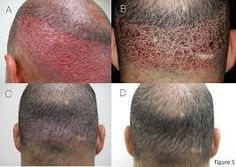 Hair transplant is the only permanent solution that can bring the hair back. Follicular Unit Extraction (FUE hair transplant) came to for a little over a decade ago and has been the most preferred option since. We shall take a look into the causes of hair loss and the transplant procedure to better understand it.