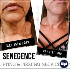 Lifting and firming! Amazimg results Quote Coco Chanel, Diy Beauty Face, Beauty Tips, Neck Cream Firming, Beauty Quotes, Acne Scars, Skin Problems, Skin Treatments, Healthy Skin