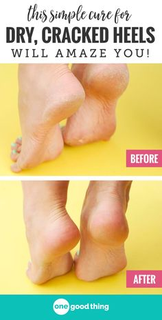 Foot soak of Listerine and vinegar works wonders to smooth and soften dry, cracked feet and heels. 1 cup Listerine, 1 cup ACV, and 2 cups warm water. Home Foot Soak, Diy Foot Soak, Foot Soaks, Soak Feet, Feet Scrub, Pedicure Soak, Pedicure At Home, Pedicure Ideas, Manicure Pedicure