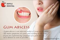 A gum abscess is a pocket of in the or the space between the and the gums. If you are experiencing symptoms of a see a as soon as possible. Dental Teeth, Dental Implants, Dental Care, Wisdom Teeth Removal, Affordable Dental, Teeth Straightening, Emergency Dentist, Best Teeth Whitening, Root Canal