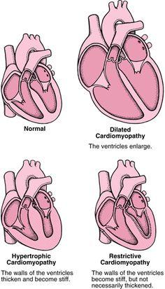 Cardiomyopathy types. Bentley's was(idiopathic) dilated cardiomyopathy