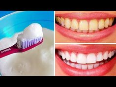 Natural Teeth Whitening Remedies 10 Ways to Naturally Whiten Yellow Teeth at Home - Teeth Whitening Remedies, Natural Teeth Whitening, Whitening Kit, Make Teeth Whiter, Reverse Cavities, Tooth Sensitivity, Receding Gums, Teeth Care, Skin Care