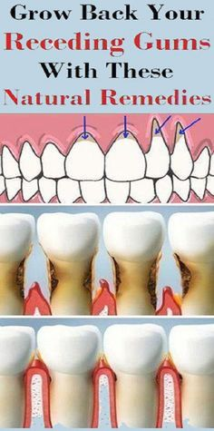 Holistic Remedies Grow back you receding gums with these natural remedies Mundpflege Alluring Become a Natural Holistic Health Practitioner Ideas Gum Health, Teeth Health, Oral Health, Dental Health, Healthy Teeth, Hair Health, Holistic Remedies, Natural Home Remedies, Health Remedies
