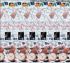 A stereogram of a heart and other organs. Eye Illusions, Can You Find It, Eye Images, Magic Eyes, Human Heart, Eye Art, Photo Wall, Frame, Puzzles