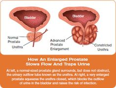 Pollen Extracts Help Enlarged Prostate.