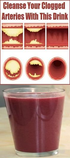 My Cardiologist Cleans My Arteries And Heals High Blood Pressure With Only 4 Tablespoons A Day Of This Natural Remedy