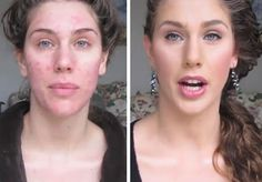 Teen bullied for acne has last laugh as she models at New York Fashion Week