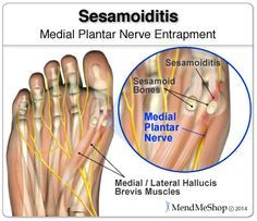 Sometimes pain is a nerve entrapment injury. Plantar Fasciitis Remedies, Soft Tissue Injury, Lose Weight Running, Massage Center, Running Injuries, Fibromyalgia, Chronic Pain, Fight The Good Fight, Pedicures
