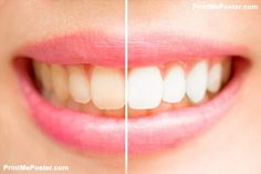 Natural Teeth Whitening Remedies 8 Teeth Whitening Products That Actually Work, According To Dentists - Dentist-recommended and budget-friendly? Check and check! Teeth Whitening Remedies, Natural Teeth Whitening, Whitening Kit, Teeth Stain Remover, Skin Care Routine For 20s, Stained Teeth, Cosmetic Dentistry, Dental Implants, Natural Home Remedies
