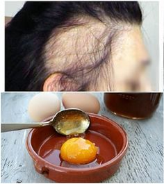 Doğal sağlık Recover Your Hair With Only These 3 Simple Materials! Natural Hair Care, Natural Hair Styles, Outdoor Fotografie, Hair Care Oil, Hair Remedies, Medicinal Herbs, Hair Health, Natural Medicine, Hair Videos