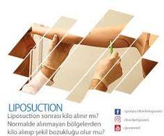 Vaser liposuction » NEDEN VASER LİPOSUCTİON ? | http://www.drerdemguven.com/jinekomasti