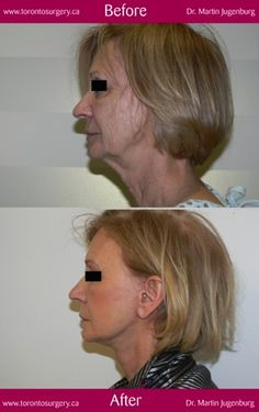 Face and Neck tightening - minimally invasive facelift at the Toronto Cosmetic Surgery Institute - Dr. Jugenburg