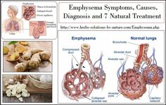 Exclusive Information about Emphysema Symptoms, Causes, Diagnosis and Natural Treatment