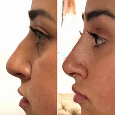 Non-Surgical Nose Job with Dr. Cohen will give you all the benefits of a rhinoplasty without surgery.