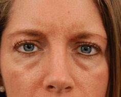 Do you have any of these three common under-eye conditions (I have all, by the way); dark circles under your eyes, crow's feet