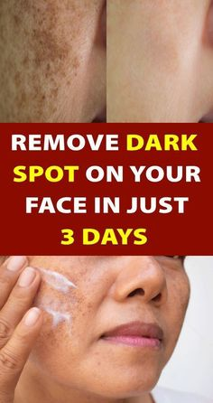 in Just 3 Nights ! Remove Dark Spots on Your Face Naturally - beauty -skin care - dark spot - naturally Skin Tips, Skin Care Tips, Beauty Care, Beauty Skin, Beauty Tips, Beauty Hacks, Beauty Makeup, Beauty Ideas, Too Faced