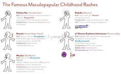 Maculopapular Childhood Rashes | Sketchy Medicine Love this website!