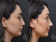 Beverly Hills Rhinoplasty Specialist Dr. Donald Yoo performed a revision rhinoplasty with ear cartilage on a  female patient. This before and after picture was taken at 1 month post surgery.