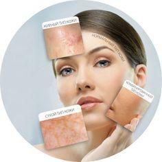 Vitiligo Laser Treatment In Pune Vitiligo Treatment, Skin Care Treatments, Base Natural, Combination Skin Care, Cope Up, Transformation Body, Pimples, Oily Skin, Skin Treatments